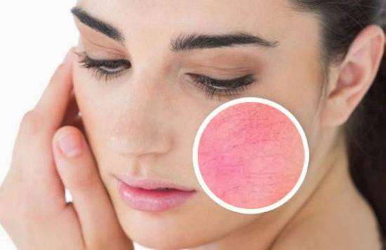 女性皮肤干燥素材